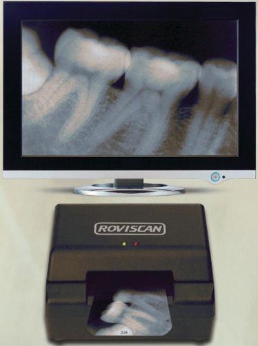 Как отсканировать рентгеновский снимок на обычном сканере