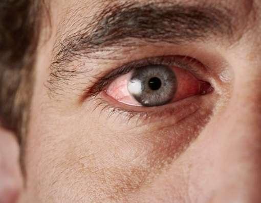 Sindrom-ustalosti-glaz-priznaki-i-prichiny-2